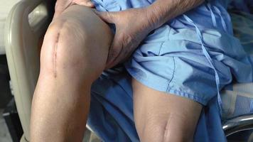 paciente asiático sênior ou idosa senhora idosa mostra suas cicatrizes artroplastia cirúrgica de artroplastia de cirurgia de ferida de sutura de substituição de articulação total do joelho na cama na enfermaria do hospital, conceito médico forte e saudável. video