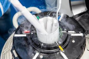Tanque criogénico de nitrógeno líquido en el laboratorio de ciencias biológicas foto