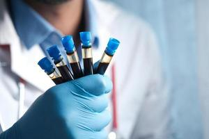 Hand in blue medical gloves holding blood test tube white sited photo