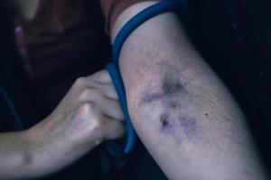 Drug addict woman pulls her hand with tourniquet. photo