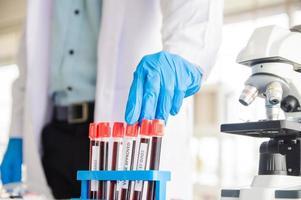 médico examina patógenos de muestras de sangre de pacientes covid19 foto