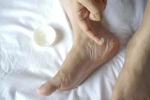 woman using petroleum jelly onto feet on bed photo
