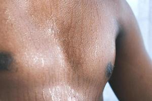 young man skin sweating in chests . photo