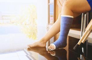 broken leg in a plaster cast photo