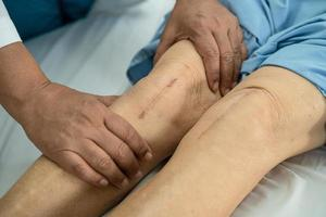 paciente asiático mayor o anciana mujer muestra sus cicatrices quirúrgico reemplazo total de la articulación de la rodilla sutura herida cirugía artroplastia en la cama en la sala del hospital de enfermería, concepto médico fuerte y saludable. foto