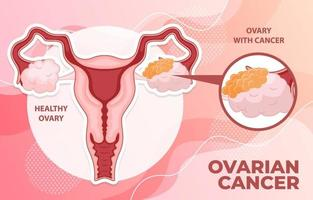 Ovarian Cancer Infographic vector