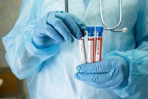 muestra de infección de sangre positiva en tubo de ensayo para coronavirus covid-19 foto