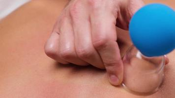 young woman receiving vacuum back massage. masseur sets vacuum cups on back, close up photo