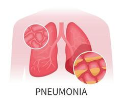 Human lungs that are damaged by pneumonia vector