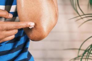 man hand applying petroleum jelly onto skin photo