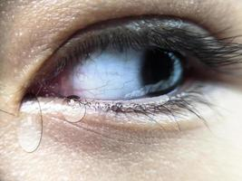 tears dripping from the corners of the eyes photo