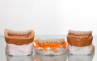 Zirconium Porcelain Tooth plate in Dentist Store photo