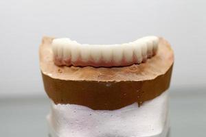 Placa dental de porcelana de circonio en la tienda del dentista foto