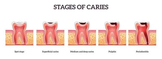 Tooth Destruction Stages vector