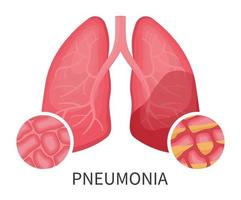 Human lungs that are damaged by virus or pneumonia vector
