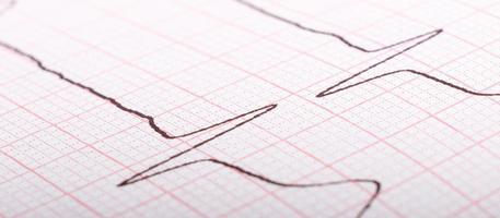 Ekg cardiograma de impulsos cardíacos de cerca, tratamiento de hipertensión. foto