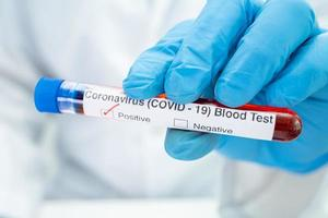 Positive blood infection sample in test tube photo