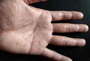 Dyshidrotic Eczema is an allergic skin condition. photo