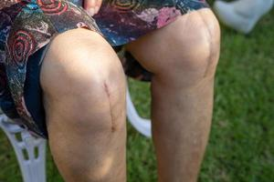 Asian senior patient show her scars surgical total knee joint photo