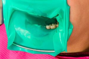 sterile dental treatment, modern equipment in dentistry. photo