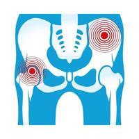 dolor reumatológico de caderas vector