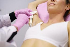 Doctor painting on the armpit of her patient, the area to be treated for hyperhidrosis. photo