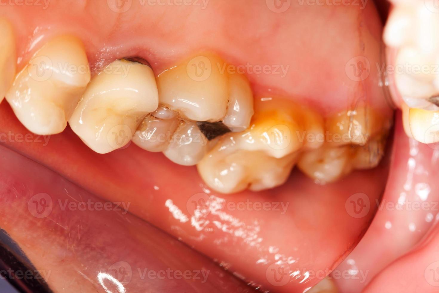 problemi dentali foto
