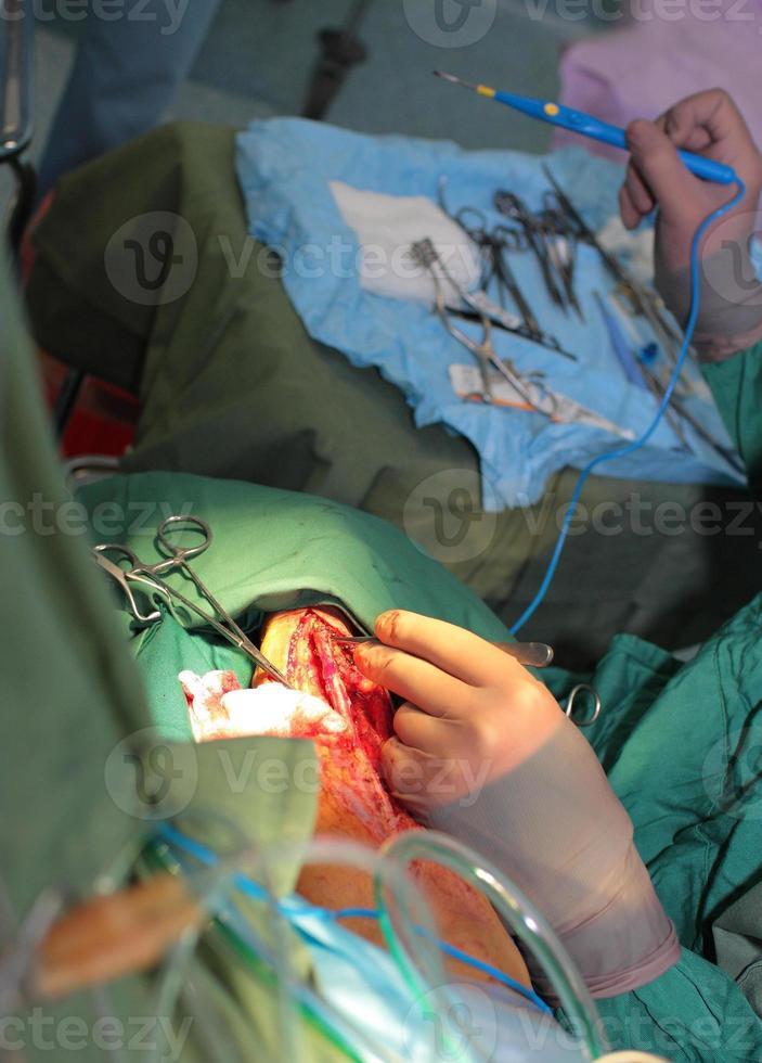 lavoro chirurgico foto