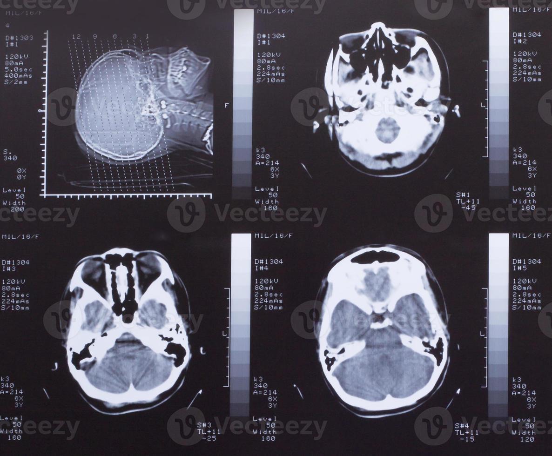 primo piano di una scansione ct con il cervello foto