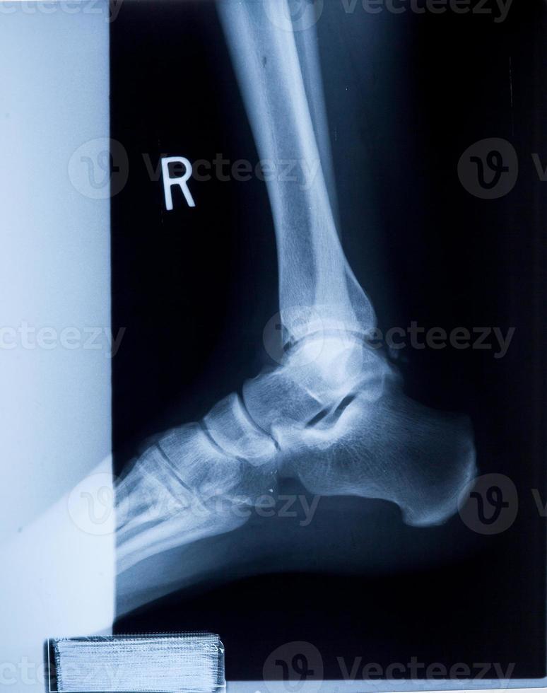 Pellicola antirumore umana ai raggi x alla caviglia e al ginocchio foto