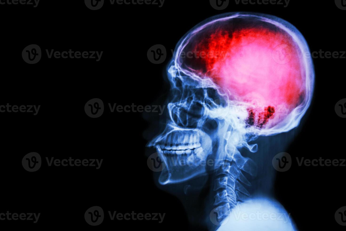 """radiografia cranio e colonna cervicale (laterale) con """"ictus"""" foto"""