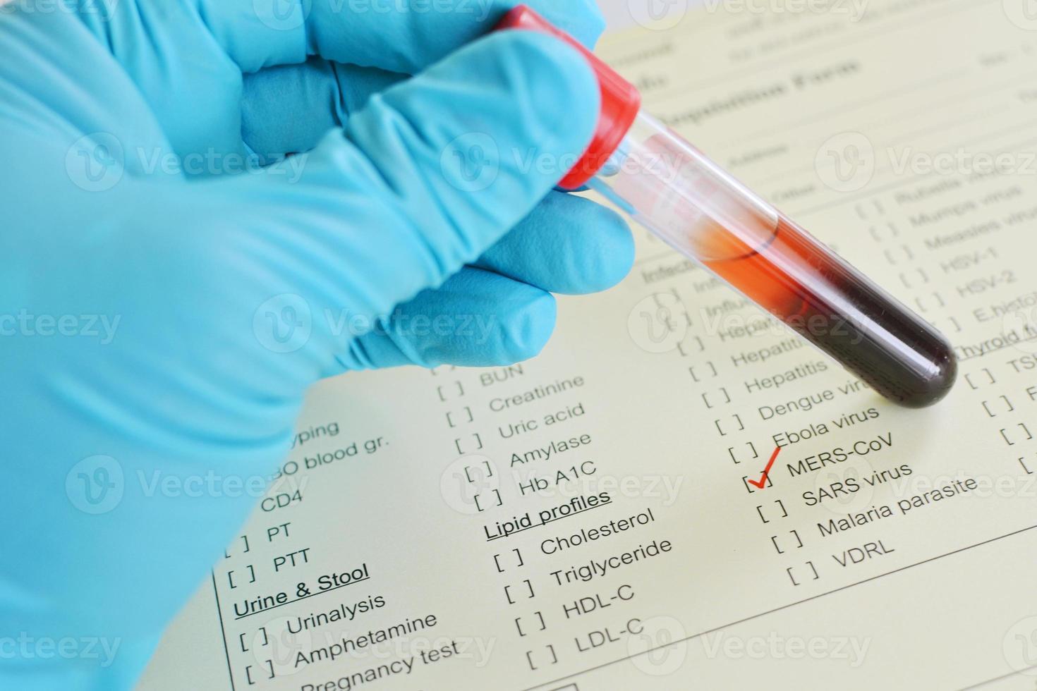 sangue per i test di mers foto