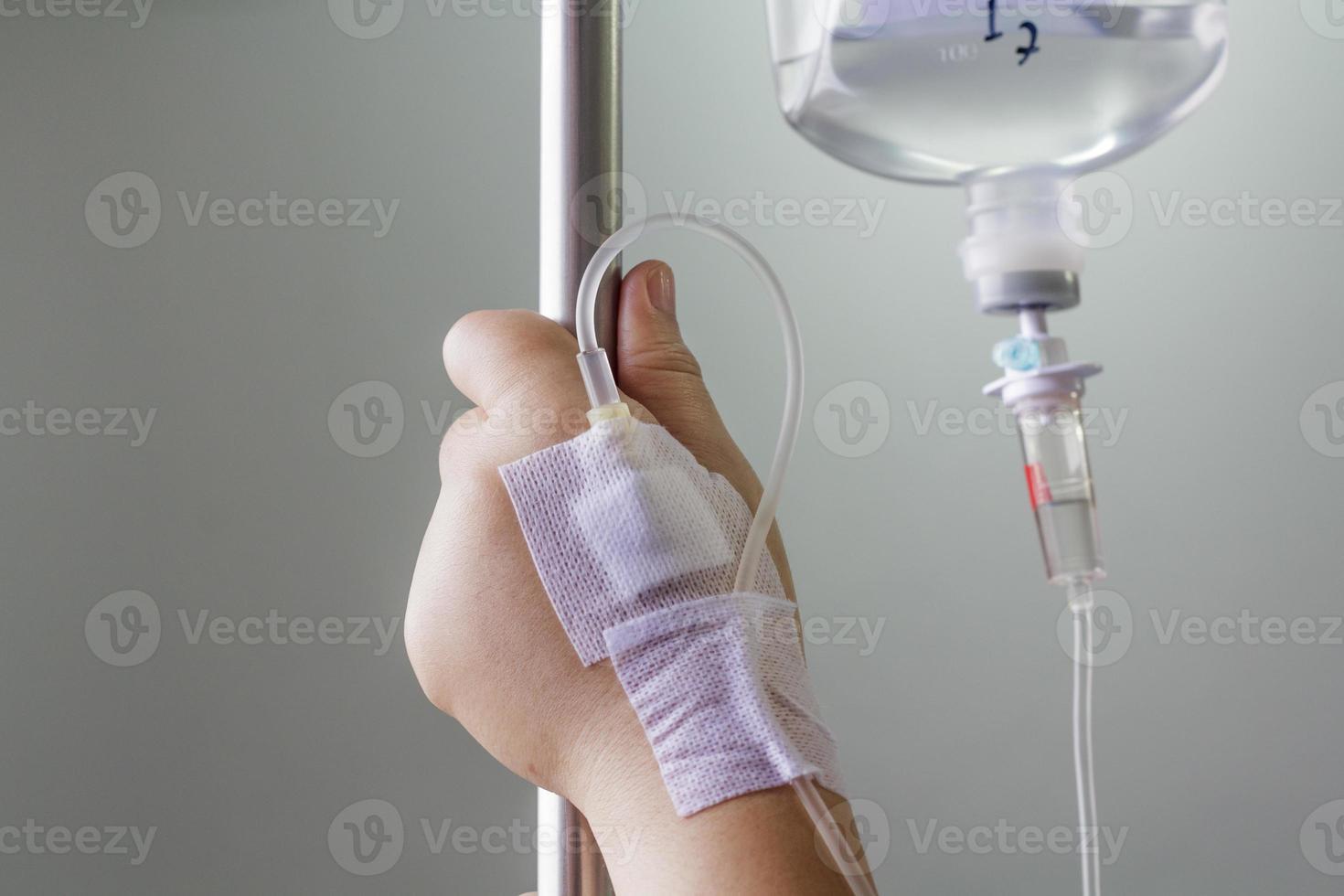 mano gonfia di soluzione fisiologica per via endovenosa (iv). foto