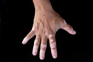 vitiligine quadricromatica foto