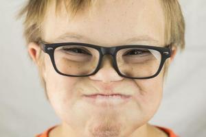 la faccia della sindrome di down foto