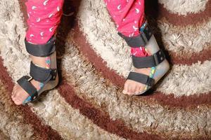 bambino con disabilità di paralisi cerebrale, ortesi per le gambe foto