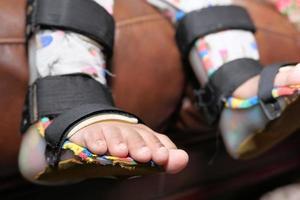 disabilità alle gambe del bambino foto