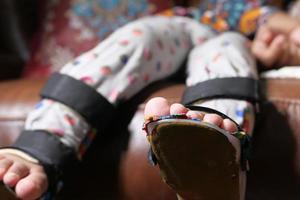 dita dei piedi del bambino con disabilità foto