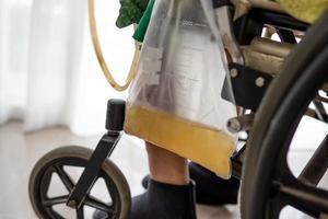 paziente asiatico della donna della signora che si siede sulla sedia a rotelle con il sacchetto dell'urina nel reparto di ospedale foto