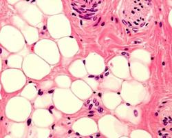 tessuto adiposo umano foto