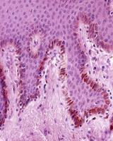 melanociti dell'epidermide umana foto