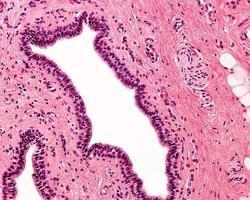 epitelio colonnare stratificato foto