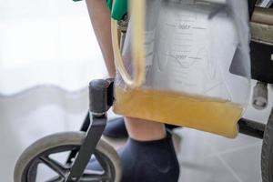 paziente asiatico della donna della signora che si siede sulla sedia a rotelle con il sacchetto dell'urina nel concetto medico sano del reparto di ospedale foto