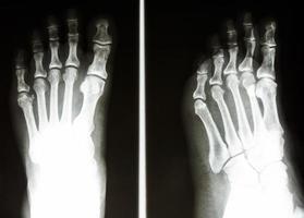 i raggi x della pellicola mostrano l'osso normale del piede umano foto