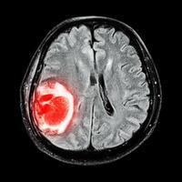 La risonanza magnetica mostra un tumore al cervello al lobo parietale destro del cervello foto