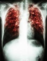tubercolosi polmonare film radiografia del torace mostra infiltrato interstiziale entrambi i polmoni a causa di infezione da micobatterio tubercolosi foto