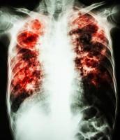 pellicola radiografia del torace mostra cavità al polmone destro fibrosi e infiltrato interstiziale e a chiazze in entrambi i polmoni a causa di infezione da micobatterio tubercolosi tubercolosi polmonare foto