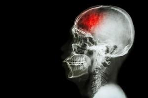 ictus incidente cerebrovascolare. pellicola radiografica laterale del cranio con tratto e area vuota sul lato sinistro foto