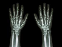 mani a raggi X, vista frontale foto