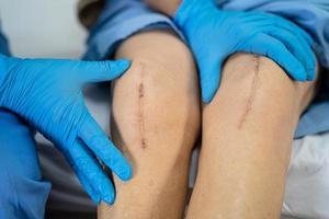 asiatico anziano o anziana signora anziana paziente mostra le sue cicatrici chirurgica sostituzione totale dell'articolazione del ginocchio sutura chirurgia della ferita artroplastica sul letto nel reparto ospedaliero di cura, concetto medico sano e forte. foto